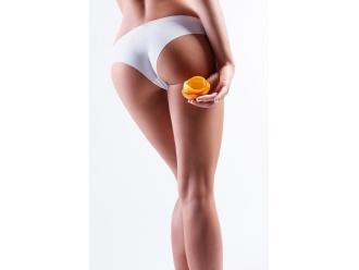Kosmetolog radzi: Opanuj cellulit, zanim on opanuje Ciebie