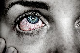 Po przebudzeniu bolą cię oczy? Nie ignoruj tych objawów!
